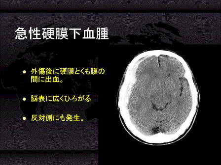 内出血 脳