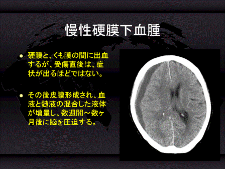 と は 硬 膜 血腫 下 高齢者に多い慢性硬膜下出血・高齢者に多い慢性硬膜下血腫の特徴と治療